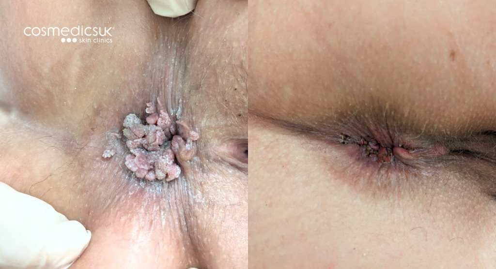 before and after anal skin tags