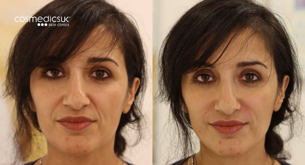 dermal fillers nose mouth lines