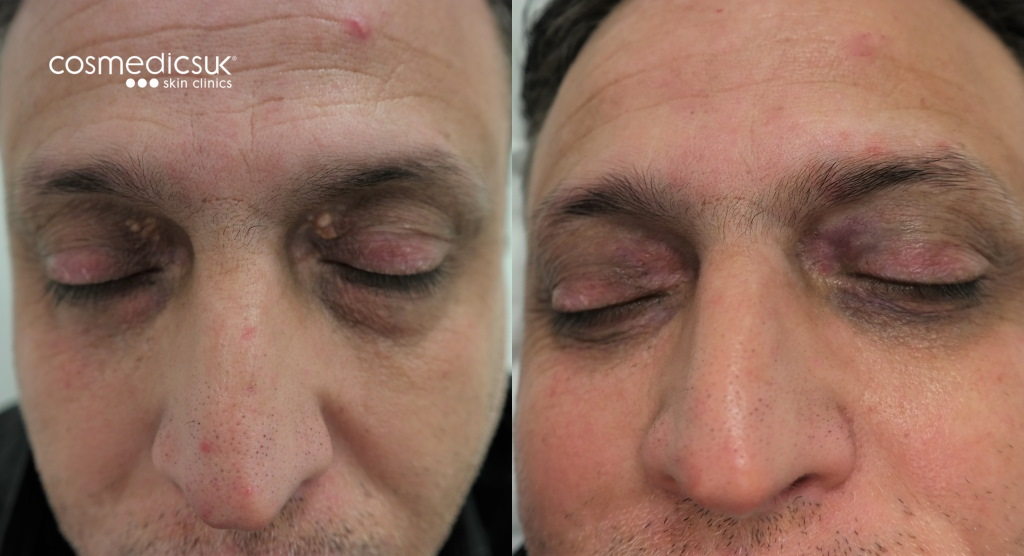 xanthelasma removal results