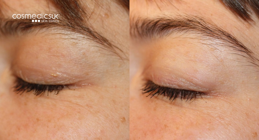 before and after xanthelasma removal