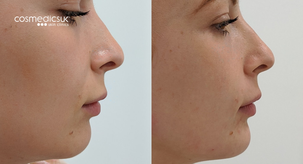Chin reshaping dermal fillers