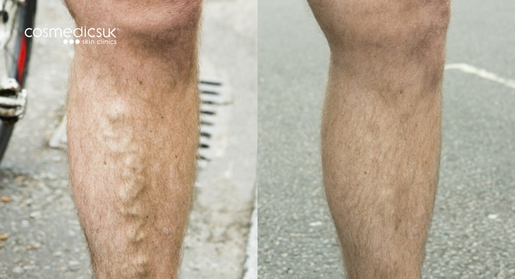 before and after EVLT varicose veins