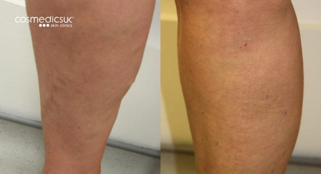 varicose vein leg before after