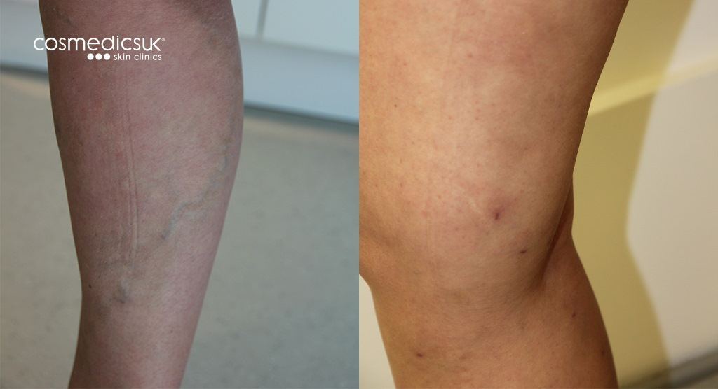 varicose vein treatment london