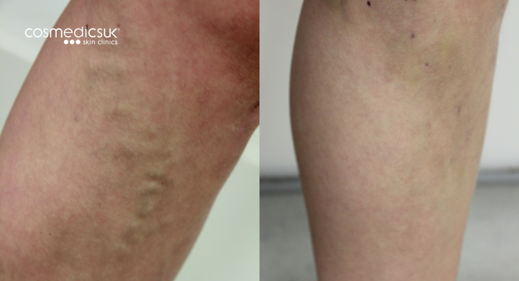 EVLA varicose vein treatment results
