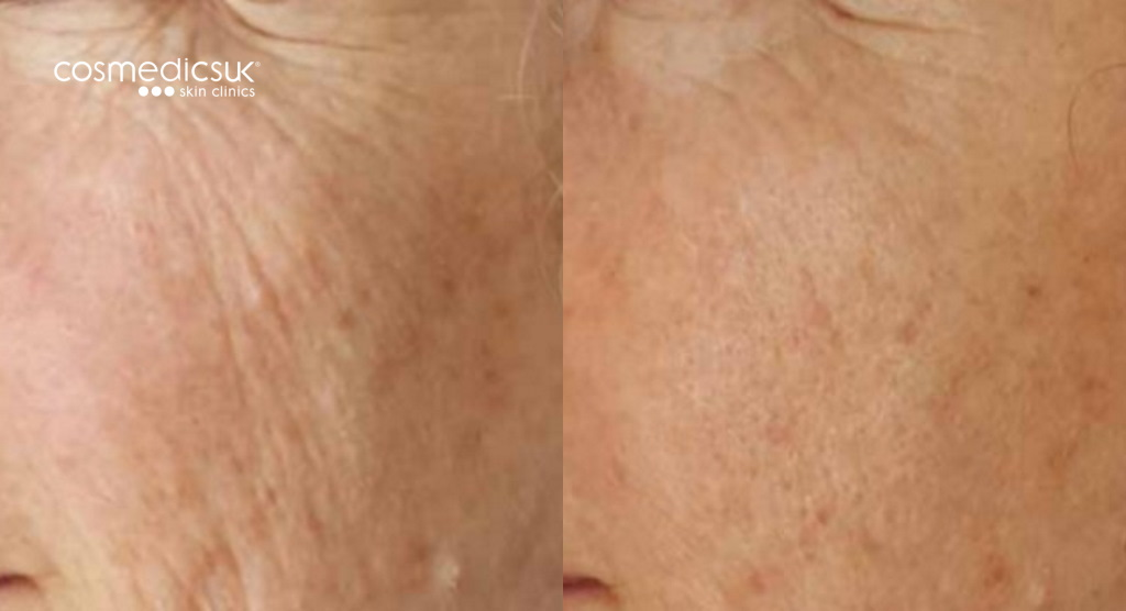 Before and after TIXEL treatment