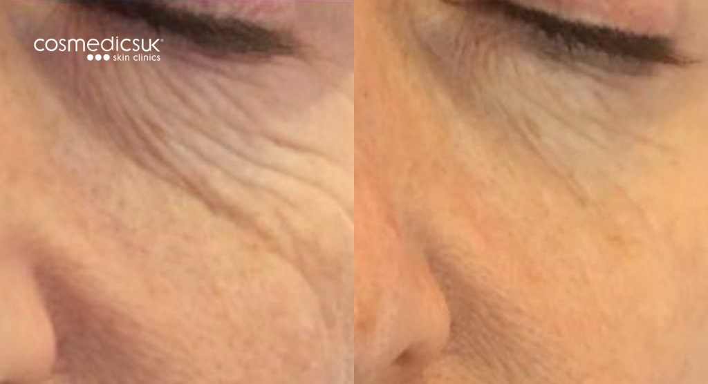 Before and after TIXEL periorbital treatment