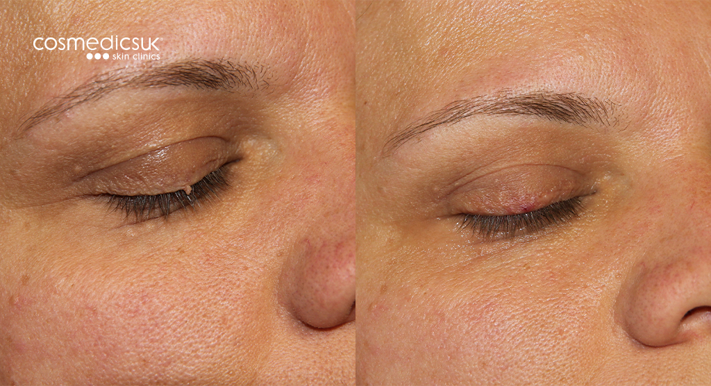 Before and After Eyelid Skin Tag Removal