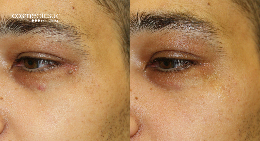 Skin Tag Removal On Eyelid