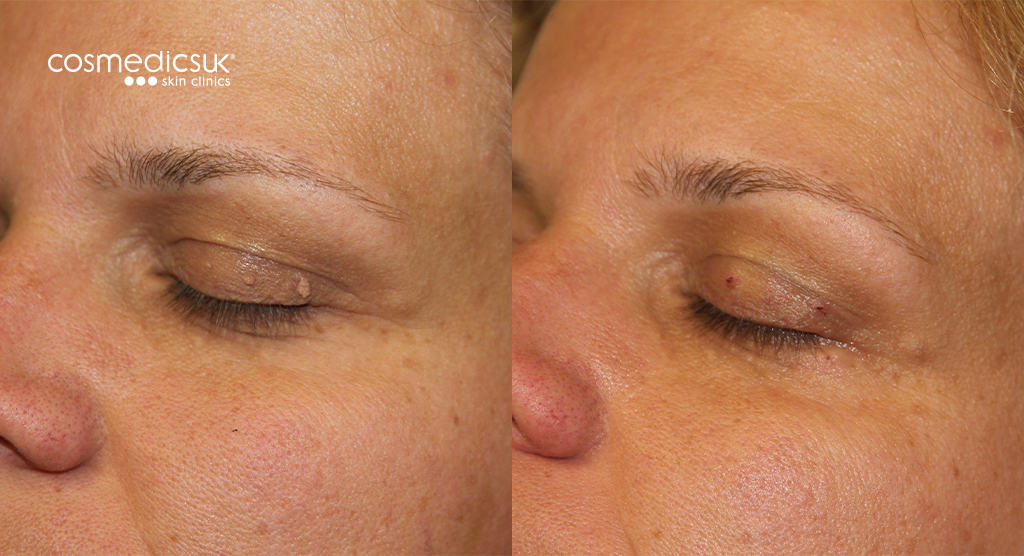 Skin Tag Removal On Eyelids