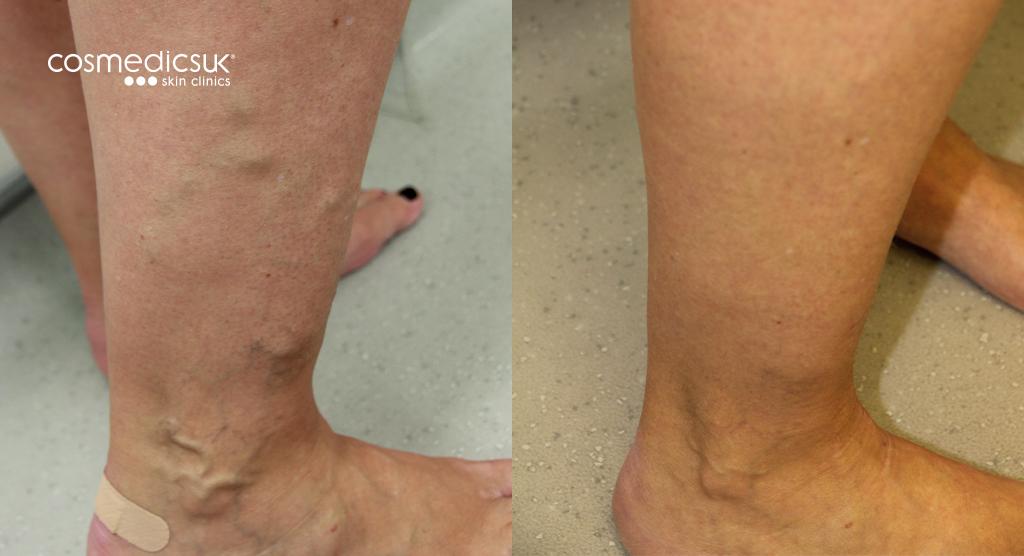 Varicose Veins Ankles