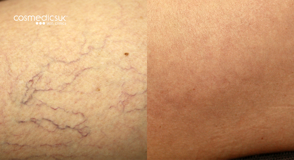 Leg Thread Vein Treatment