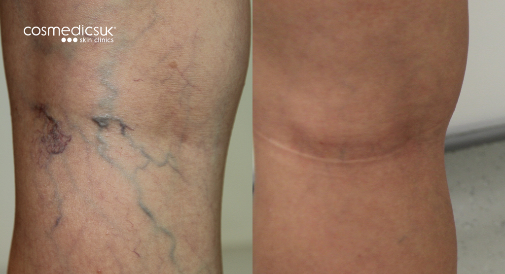 Thread vein treatment before after