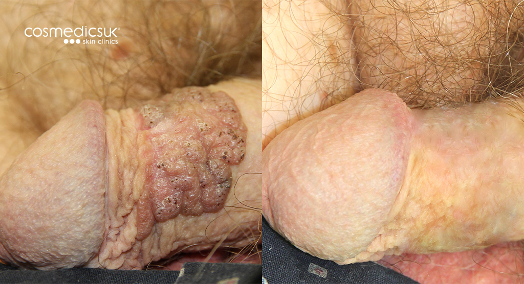 Male Penis Warts before and after