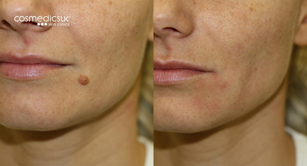 mole-removal-chin-surgery