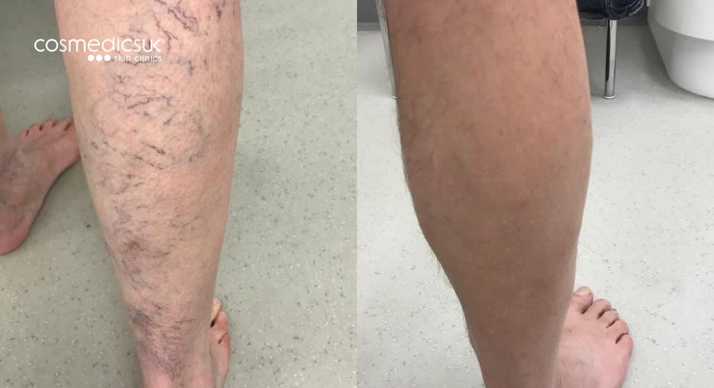 Foam sclerotherapy before and after results
