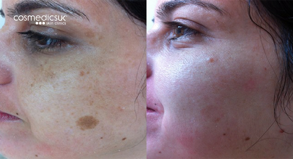 Laser Pigmentation Treatment Before and After
