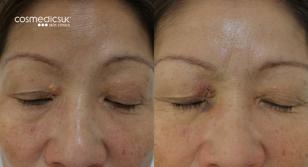 before after xanthelasma treatment london