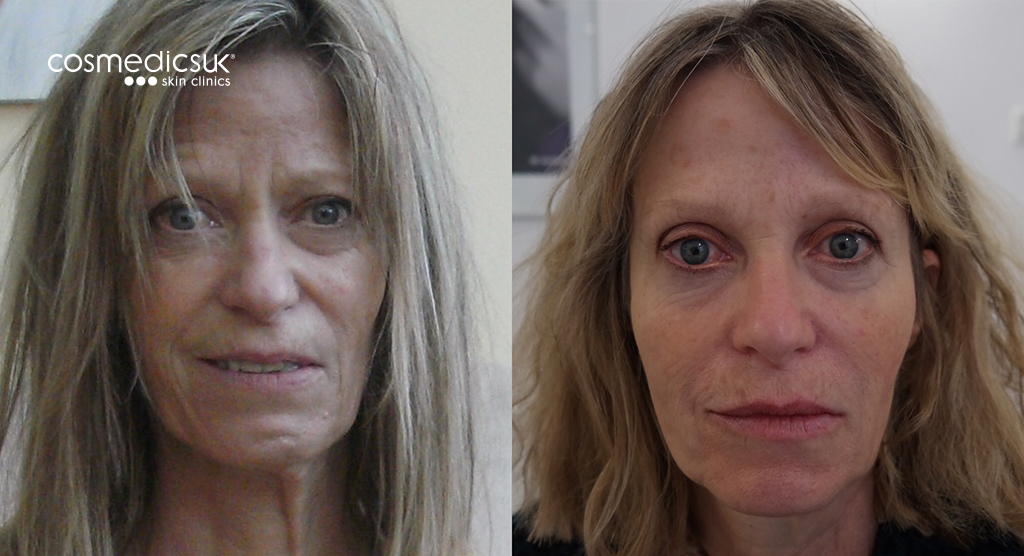 Bells Palsy Before And After BOTOX + Fillers
