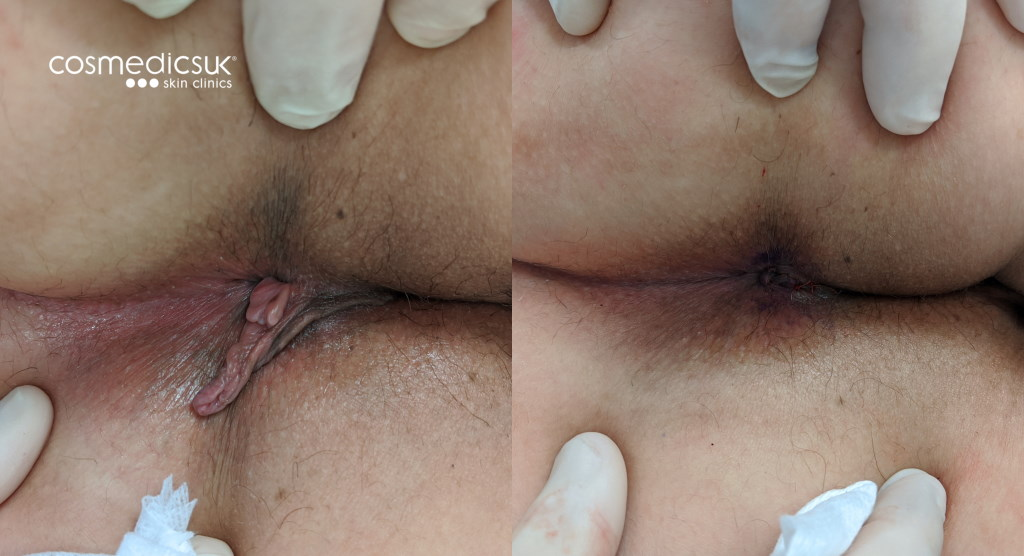 Before and after anal skin tag removal
