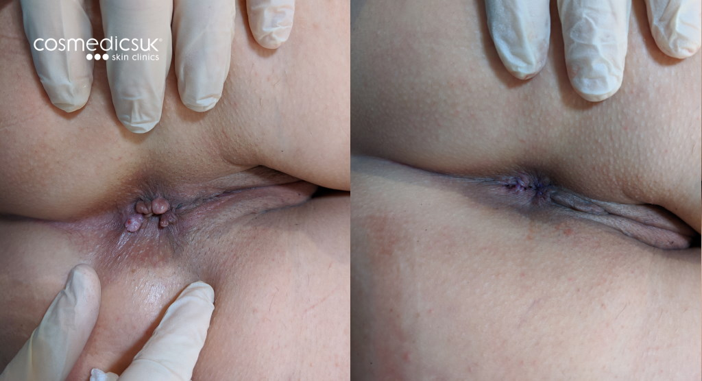 Anal skin tag removal before after