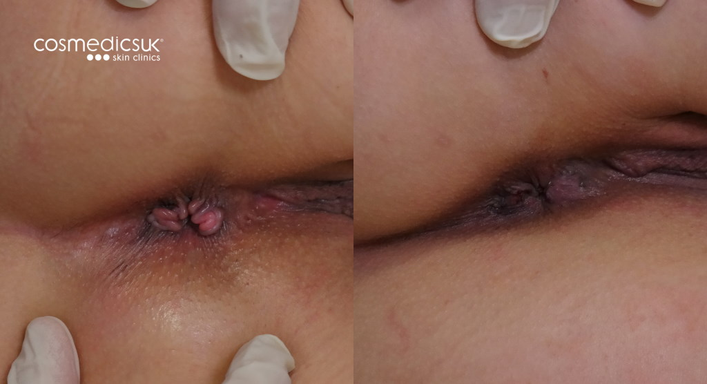 Before and after anal skin tag treatment
