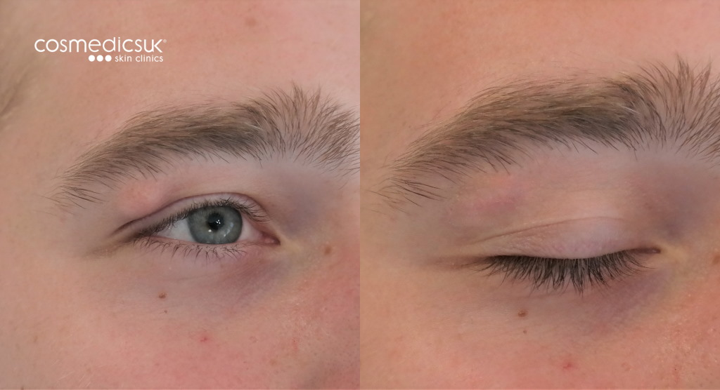 Eyelid cyst removal results