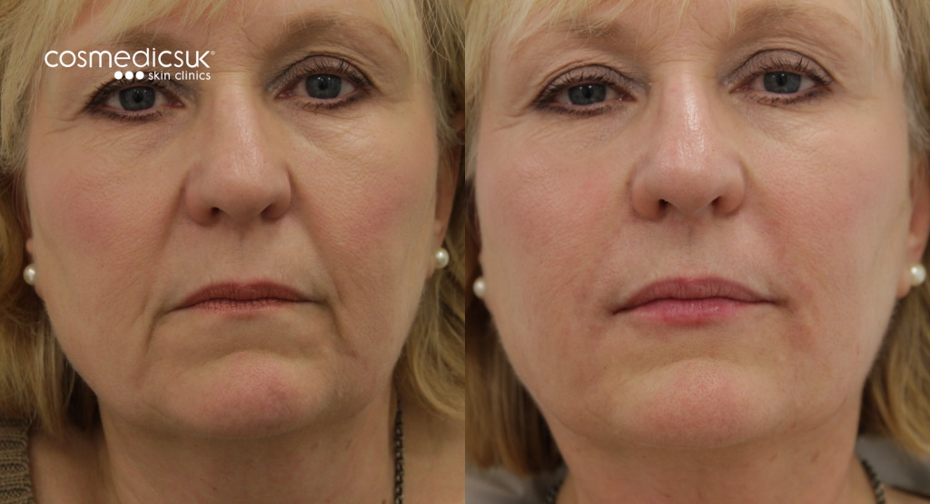 Facial filler results