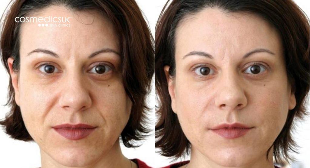Before and after dermal filler results