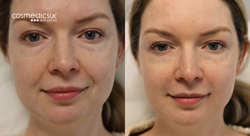 Dermal filler results London