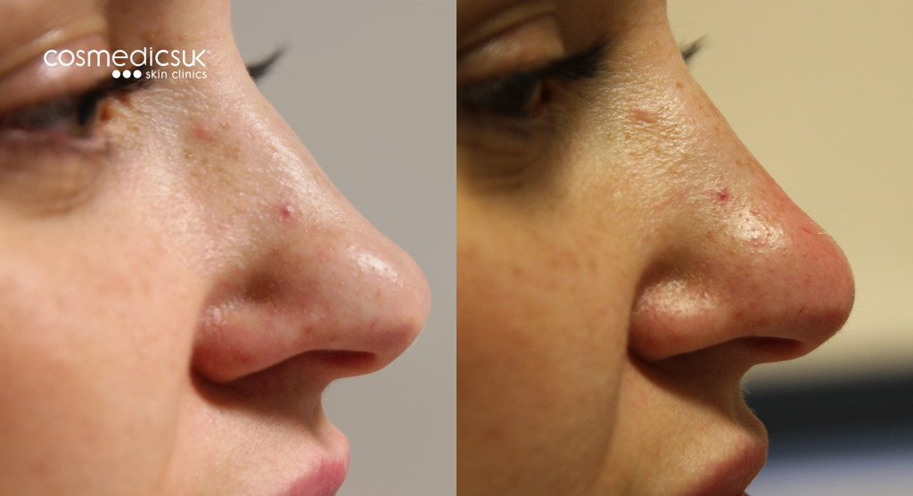 Nose smoothing treatment