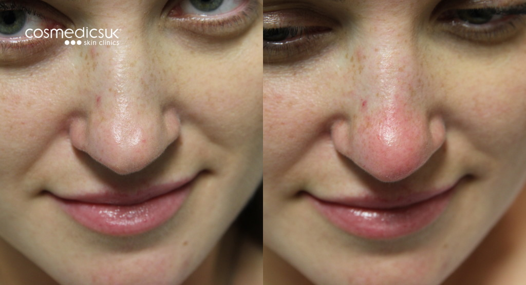 Nose bump treatment
