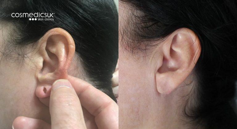 Split earlobe repair results