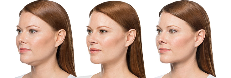 BELKYRA double chin results