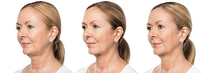 London BELKYRA chin treatment
