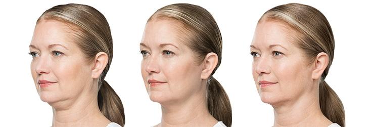 BELKYRA chin treatment
