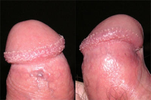 Pearly Papules