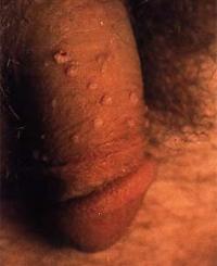penile warts men