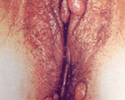 vaginal genital warts outside