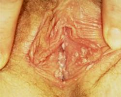 vaginal genital warts inside