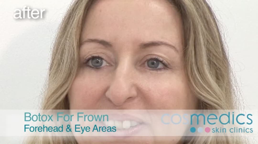 BOTOX injection for wrinkles