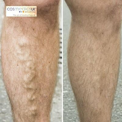 Video: EVLT Varicose Veins Treatment/Results
