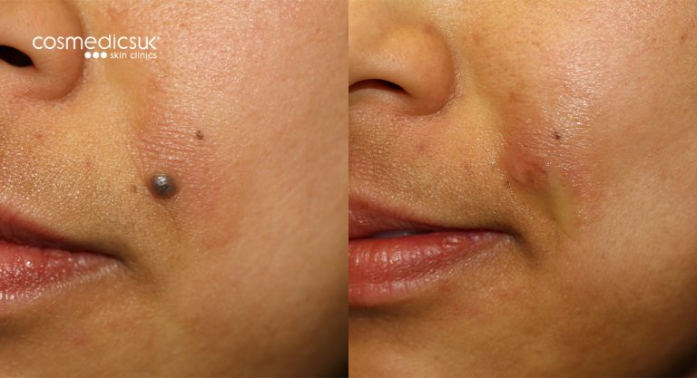 mole-removal-cheek-before-after