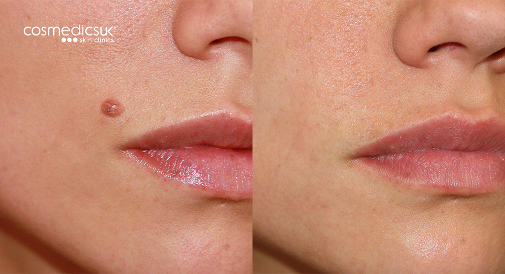 shave excision mole removal from lips
