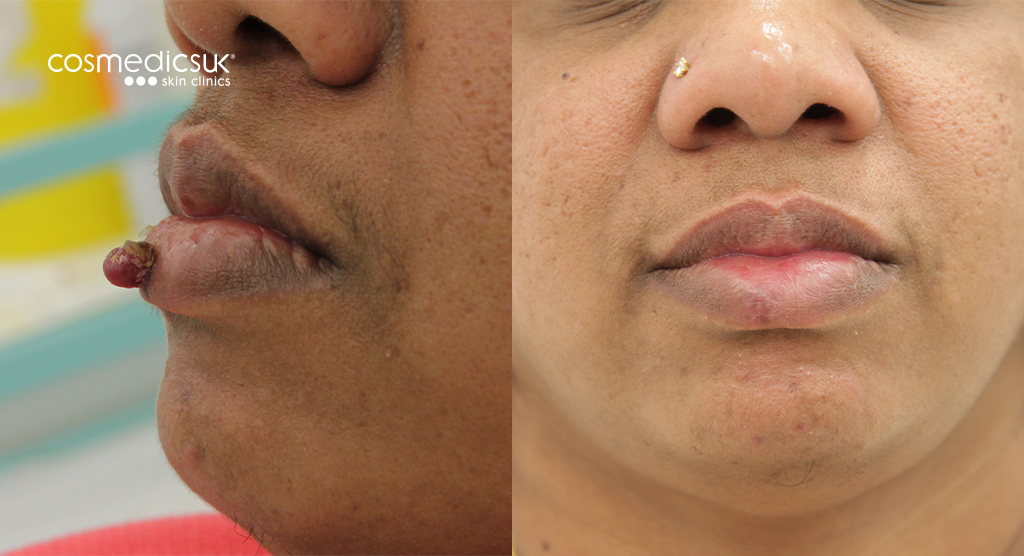 lip cyst mole removal results