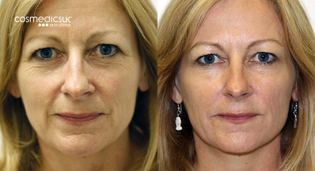 dermal fillers results London