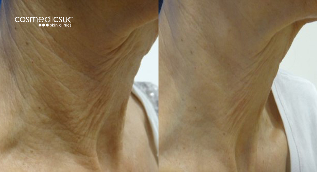 Laser skin tightening is used to rejuvenate the neck area, creating a non-surgical neck lift
