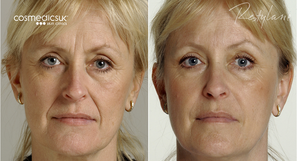 facial-fillers-restylane-before-after