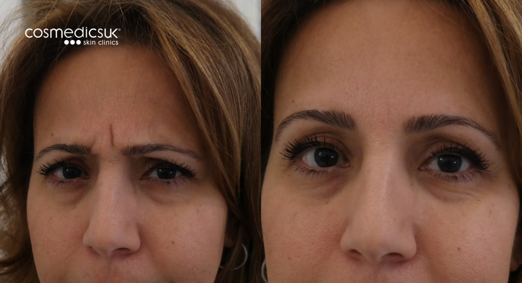 Forehead BOTOX results