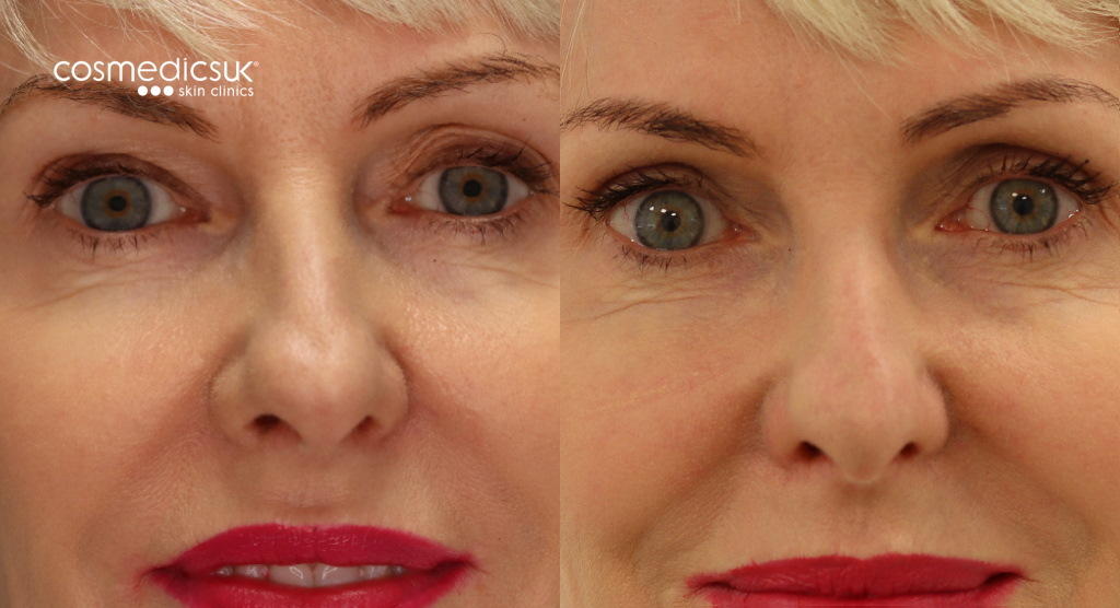 Eyelid lift before and after results